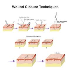 Wound closure techniques vector