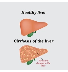 cirrhosis of the liver essay Chronic liver disease, including cirrhosis, is the seventh most common cause of death in the united states among young and middle-aged adults more than 40% of those deaths are associated with alcohol.