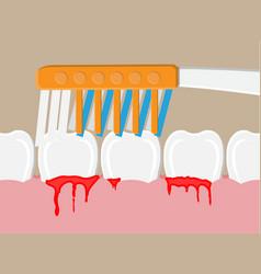Periodontal disease bleeding gums vector