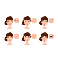 Woman with skin problem acne vector