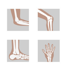 medical orthopedic of set vector image