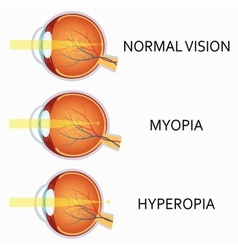 Optical human eye defects myopia and hyperopia vector