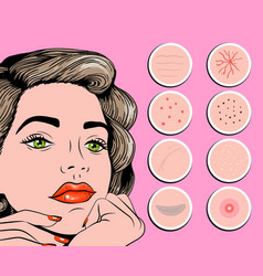 facial problem of acne pimples wrinkles vector image