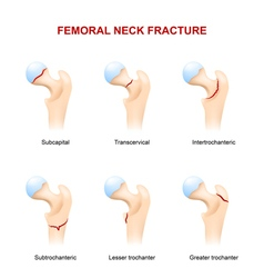 Femoral neck fracture vector image