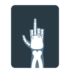 X-rays to Bones hands show thumbs up Obscene vector image vector image