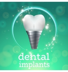 Dental implants 1 vector