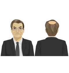 Sad mature businessman with bald problem vector