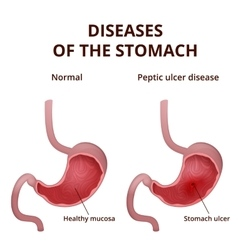 Anatomy of the human healthy and unhealthy stomach vector