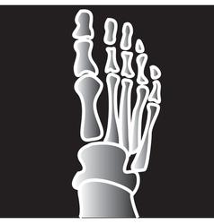 Xray broken bones vector