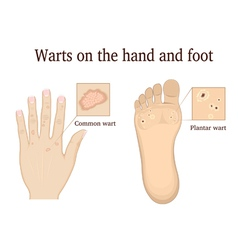 Warts on the hand and foot vector