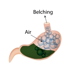Belching Air in the stomach The structure of the vector image vector image