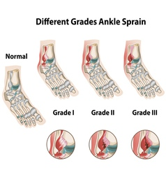 Different grades of ankle sprains vector