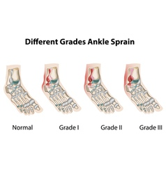 Different grades of ankle sprains1 vector