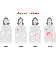 Staging of lymphoma vector