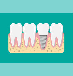 tooth restoration dental implant vector image vector image