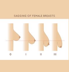 female breast sagging vector image vector image