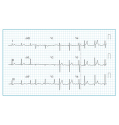 Heart cardiogram chart  of vector