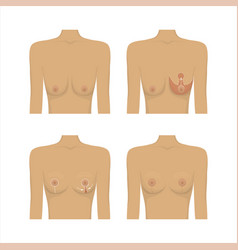 lifting breast plastic surgery vector image vector image