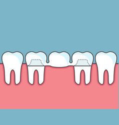 Dental bridge and row of teeth vector