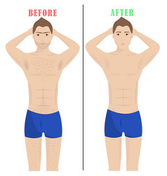 man depilationlaser hair removal male epilation vector image vector image