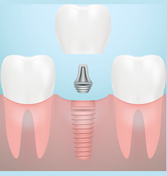 Human teeth and dental implant isolated on a vector