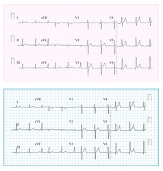 heart cardiogram chart  set healthy heart vector image