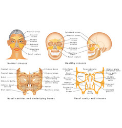 sinuses of nose vector image vector image