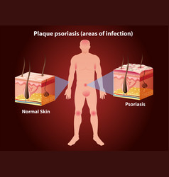 Diagram showing plaque psoriasis in human vector