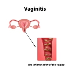 Inflammation of the vagina vaginitis vector