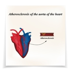 Atherosclerosis of the arteries of the heart vector