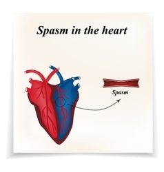 Spasm of the arteries of the heart infographics vector
