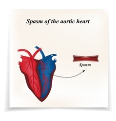 Spasm of the arteries of the heart Infographics vector image vector image