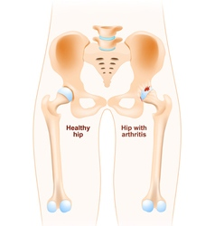 Healthy hip and hip with osteoarthritis vector