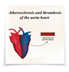 Atherosclerosis and thrombosis of arteries of the vector image