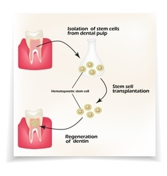 Stem cells from the dentin of the tooth is used to vector