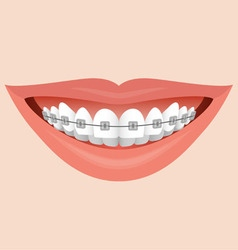 Smile with braces vector
