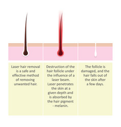 laser hair removal description procedure vector image vector image