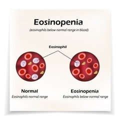 Eosinophils below normal range in blood vector