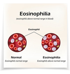 Eosinophils above normal range in blood vector