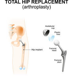 Total hip replacement vector image vector image