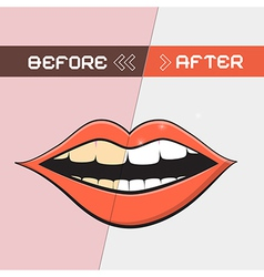 Retro Mouth - Cleaning Teeth Symbol vector image