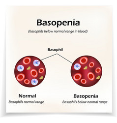 Basophils below the normal range in the blood vector