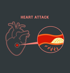 heart attack logo icon design vector image vector image