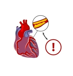 The risk of heart failure vector