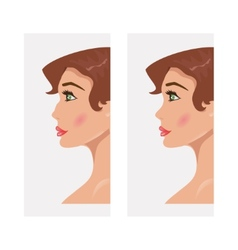Woman before and after rhinoplasty vector