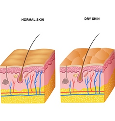 Cartoon of the layers normal skin and dry ski vector