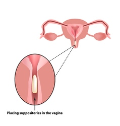 Treatment of vaginitis suppositories inflammation vector