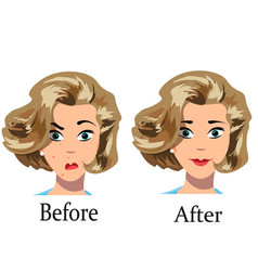 Acne treatment before after vector