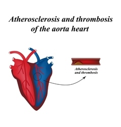 Atherosclerosis and thrombosis of arteries of the vector image vector image