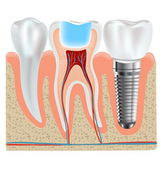 Dental implant and real tooth anatomy closeup vector